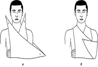 Наложение повязки на руку при переломе: как сделать для фиксации перелома и растяжения