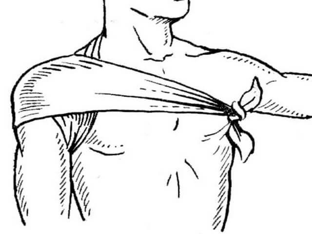 Перебинтованное плечо