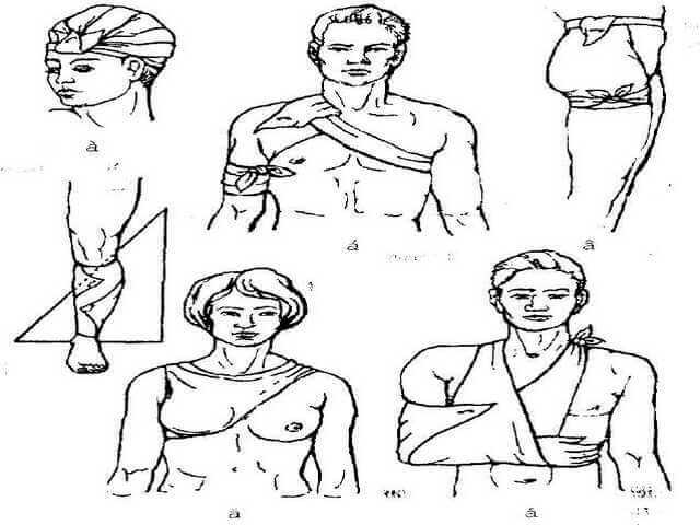 Перебинтованная грудь и голова