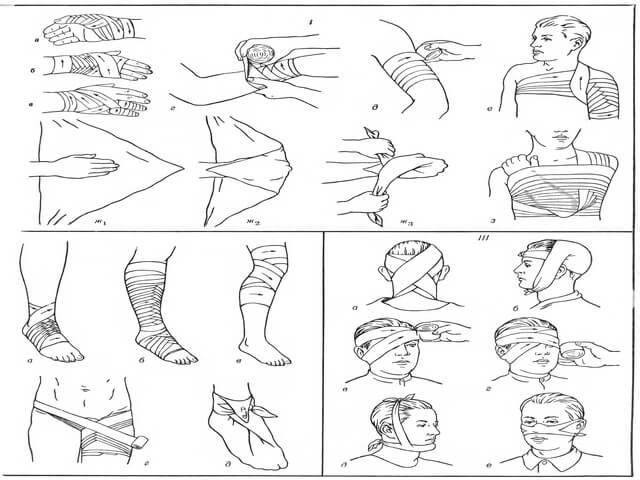 Повязки для различных частей тела
