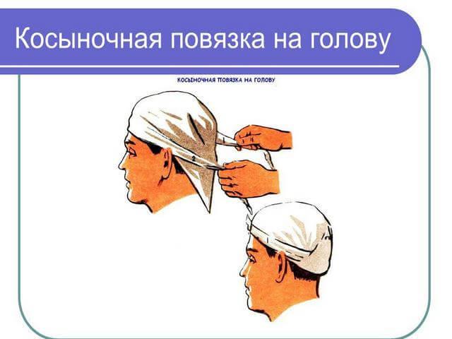 Перебинтовка головы