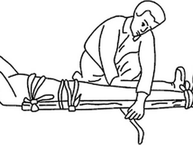 Какие суставы должны фиксировать шину при переломе бедра прибор для леченияколенного суставов