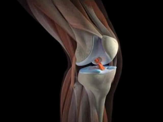 Некроз коленного сустава
