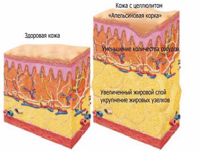 Особенности кожи с целлюлитом