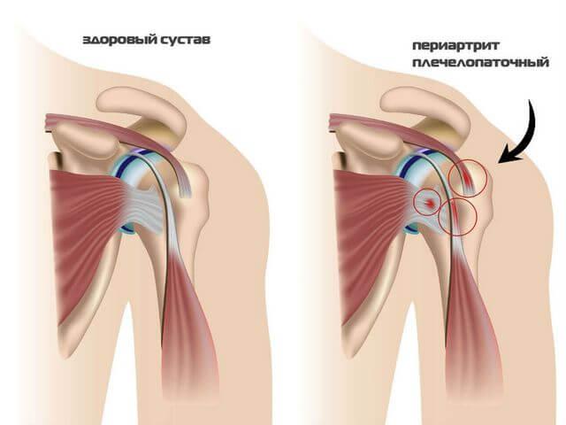 Изображение - Массаж плечевого сустава Massazh-plech4