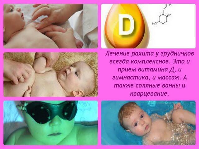 Лечение рахита у детей педиатрия