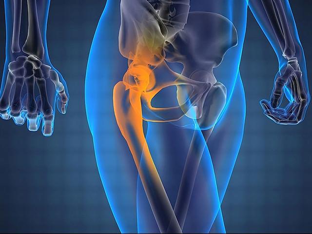 Изображение - Хрустит нога в тазобедренном суставе hrust-v-tazobedrennom-sustave-3