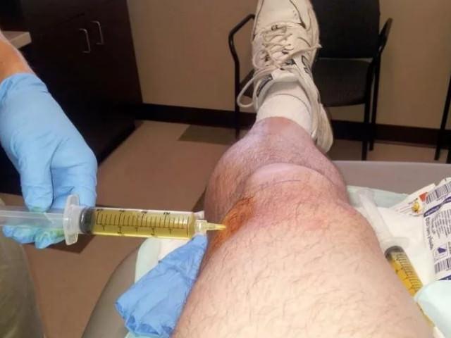 Жидкость в коленном суставе массаж thumbnail