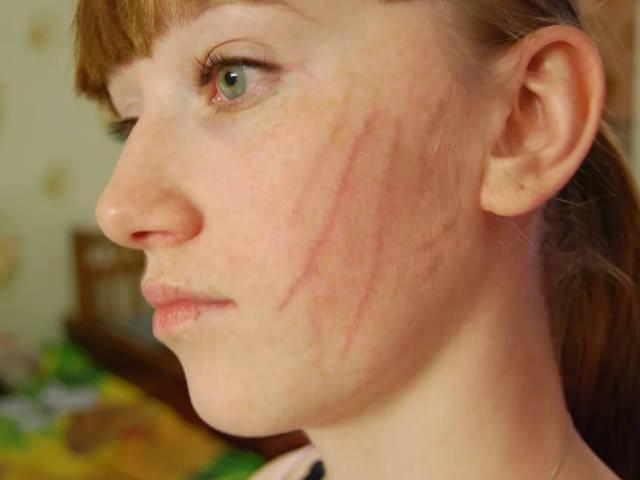 Травма на коже