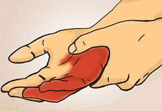 Онемение ладони левой руки причины и лечение