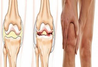 Мениски коленного сустава симптомы лечение в домашних условиях 252