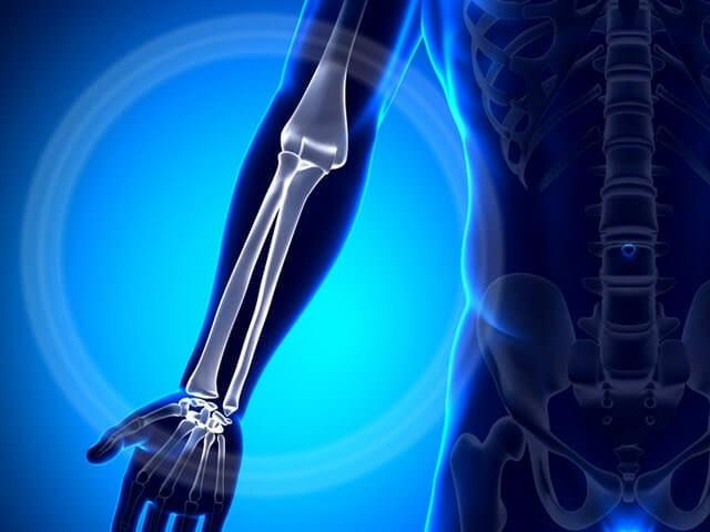 Снимок лучевой кости руки