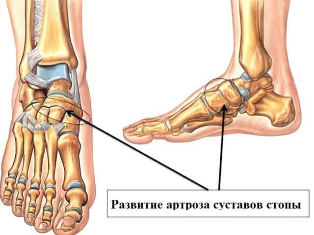 Предплюсне-плюсневый сустав боли дают ли инвалидность после протезирования тазобедренного сустава