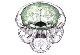 Снимок кости черепа