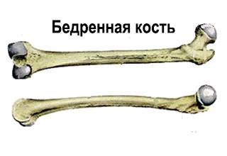 Анатомия бедренной кости человека: где находится, строение кости бедра, мыщелки, большой и малый вертел, сосуды и нервы