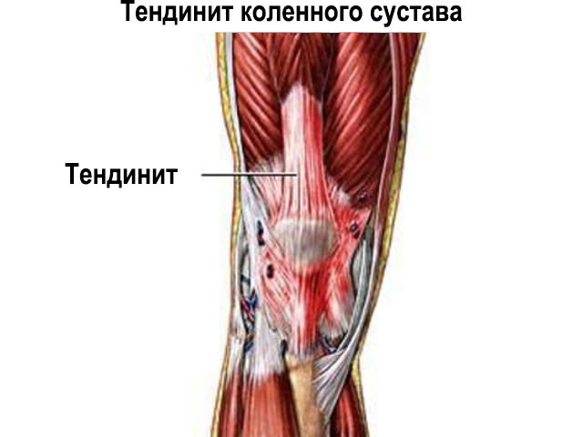 Заболевание сустава и связок