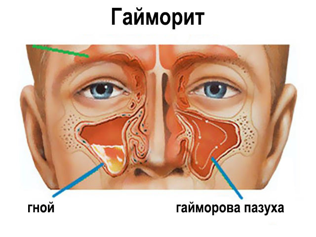 Гайморит симптомы форум