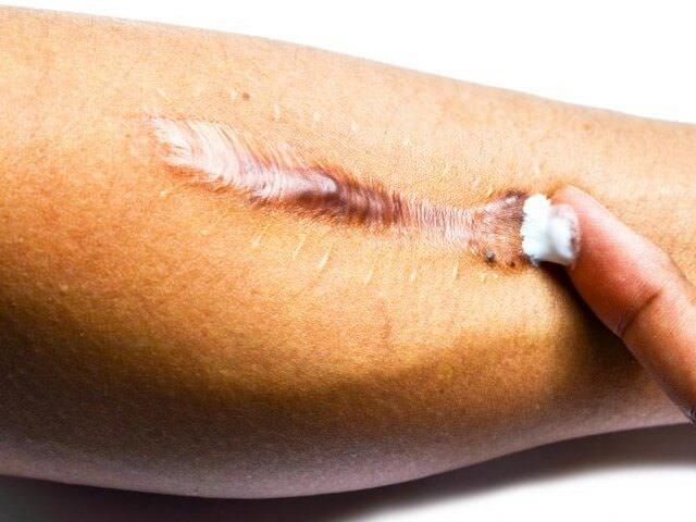 Косметологическое лечение