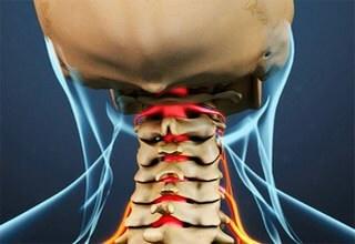 Защемление шейного нерва: симптомы и лечение в домашних условиях