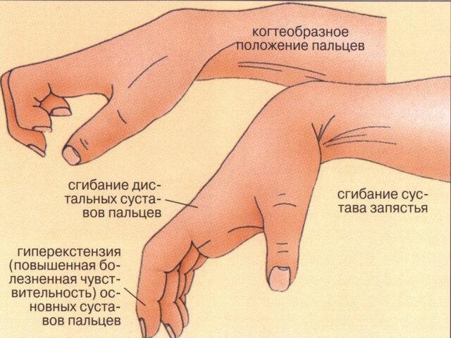 Травмированная кисть