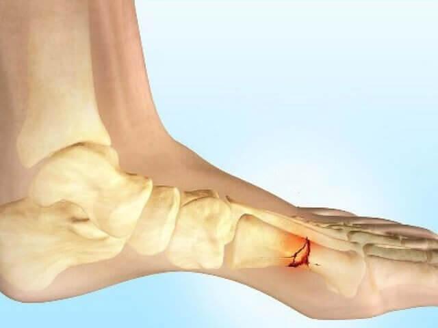 Снимок ноги с травмой