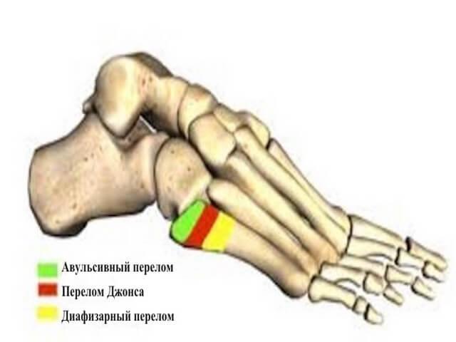 Различные переломы кости