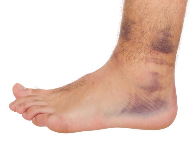 Травма нижней конечности