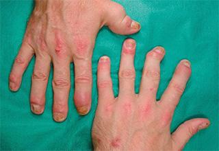Псориатический артрит: симптомы, лечение