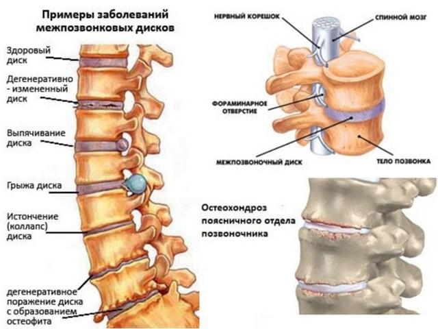 Признаки остеохондроза шейного отдела позвоночника лечение