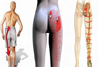 Лечение нерва на ноге