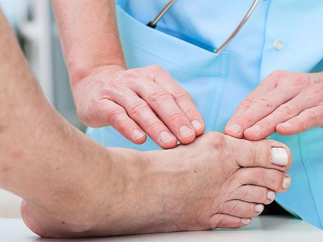 Изображение - Деформация сустава большого пальца ноги artroz-bolshogo-palca-nogi-2
