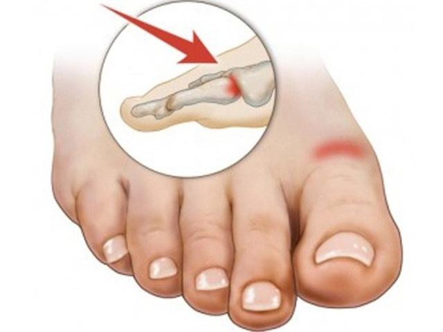 Изображение - Деформация сустава большого пальца ноги artroz-bolshogo-palca-nogi-3