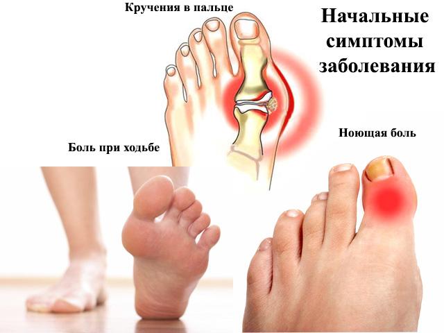 Изображение - Деформация сустава большого пальца ноги artroz-bolshogo-palca-nogi-4