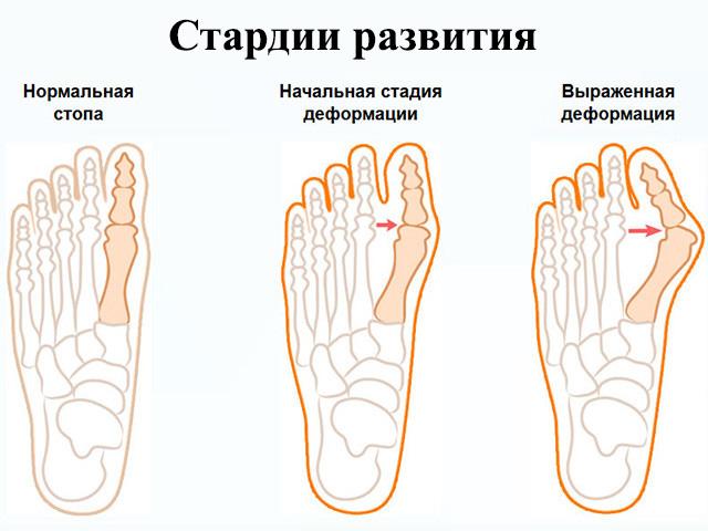 Изображение - Деформация сустава большого пальца ноги artroz-bolshogo-palca-nogi-8