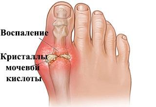 Артроз косточки большого пальца на ногах покраснение боль лечение