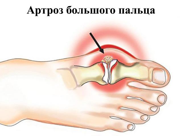 Изображение - Деформация сустава большого пальца ноги artroz-bolshogo-palca-nogi