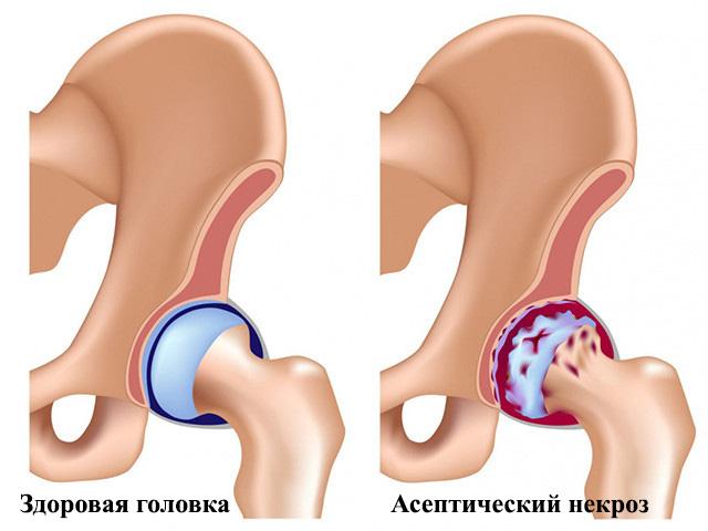 Стадии асептического некроза головки бедренной кости