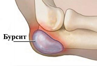Ложке 3 4 раза день бурсит воспаление слизистой сумки сустава лфк при переломах локтевого сустава