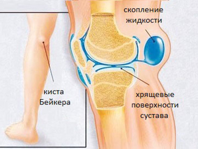 Кисты коленного сустава в магнитно-ре хруст суставов в руке