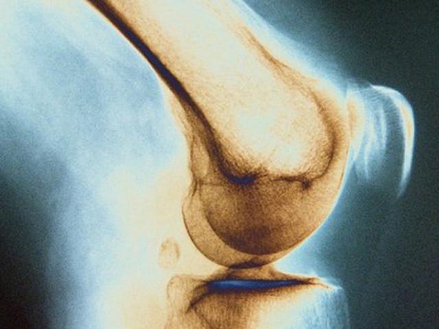 Костный туберкулез тазобедренного сустава центр лечения суставов уссурийск