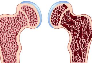 Лечение остеопороза народными средствами отзывы кто вылечился