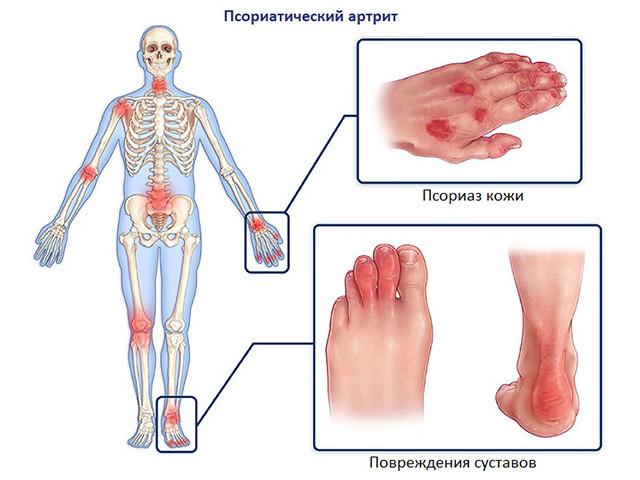 как избавиться от боли при псориатическом артрите