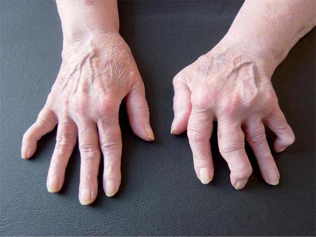 Болезнь суставов пальцев рук лечение народными средствами