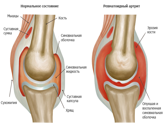 Полиартрит суставов лечение народными методами компрессы из скипидара на суставы