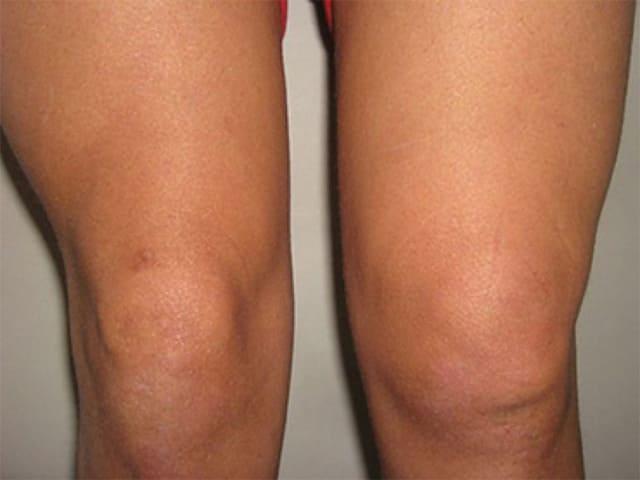 Как вылечить синовит коленного сустава народными средствами видео ушиб тазобедренного сустава у пожилых при падении