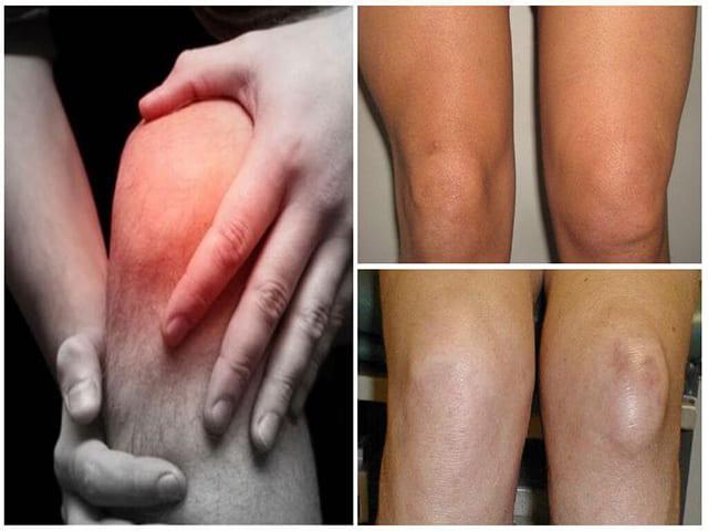 Изображение - Травматический синовит коленного сустава Sinovit_kolennogo_sustava3