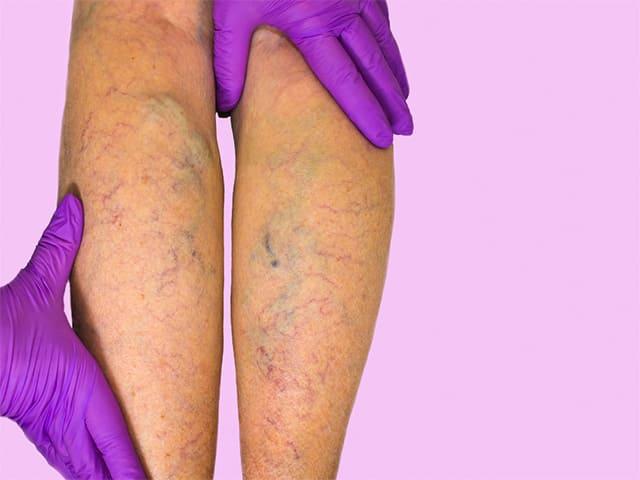 Тяжесть в ногах при ходьбе лечение