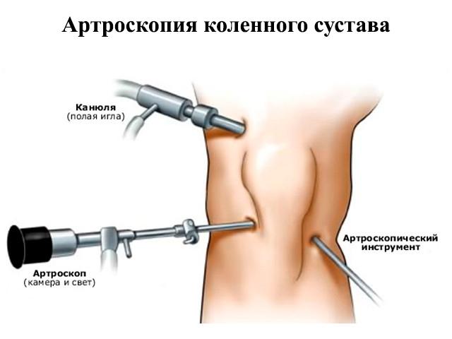 Процедуры восстанавливающие кровоснабжение сустава теннисный локоть где болит