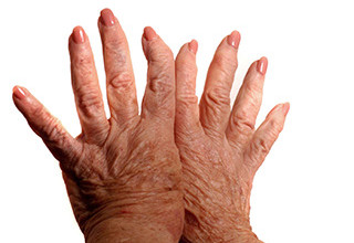 Артроз кистей рук симптомы и лечение фото