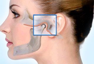 Артроз челюстно лицевого сустава симптомы